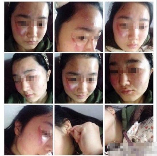 女教师殴打女学生至其毁容 怀疑往其身上泼水